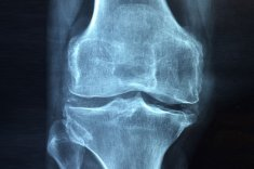 An xray of a knee