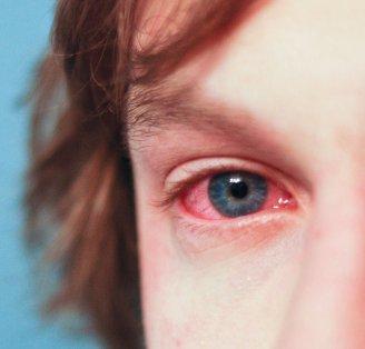 Allergy image courtesy of Flickr/nub